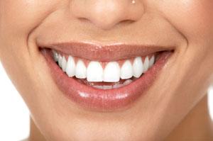 Porcelain Veneer Smiling Woman