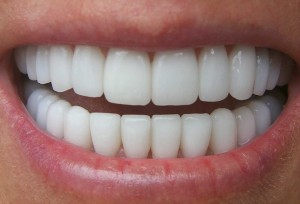 service-teeth-whitening